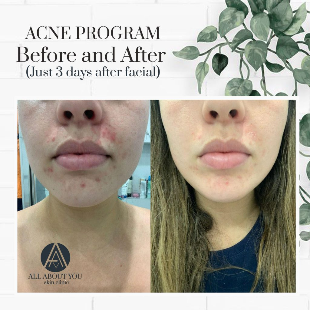 All about you acne program
