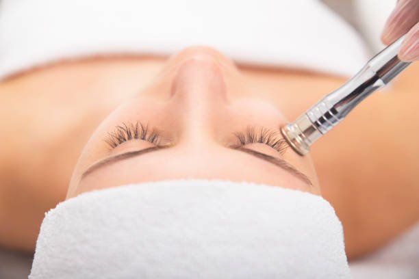 Girl getting a microdermabrasion treatment