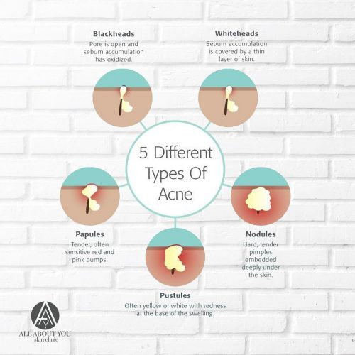 5 different types of acne